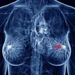 ung thư tuyến vú