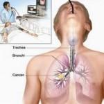 Hiệu quả điều trị ung thư màng nhung bằng thuốc hóa học