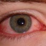 Dịch đau mắt đỏ bùng phát tại Hà Nội