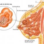 Bệnh u sợi tuyến vú