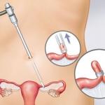 Đặt vòng tránh thai và những điều chị em nên biết