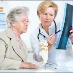 Bệnh loãng xương ở phụ nữ mãn kinh