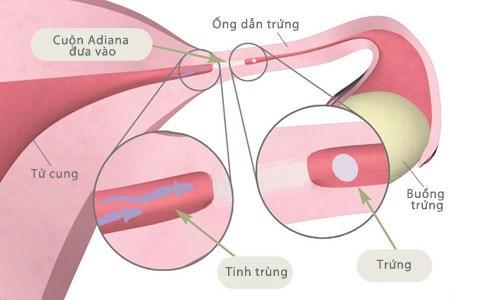 Thắt ống dấn trứng để ngừa thai