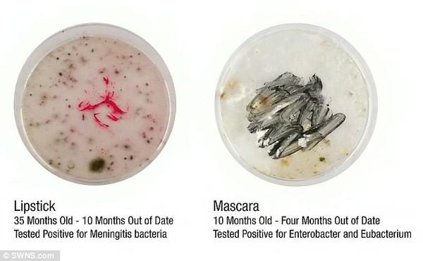 Viêm âm đạo và các bệnh nguy hiểm khác từ mỹ phẩm hết hạn (2)