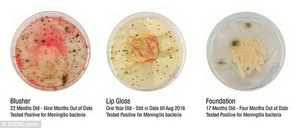 Viêm âm đạo và các bệnh nguy hiểm khác từ mỹ phẩm hết hạn (1)
