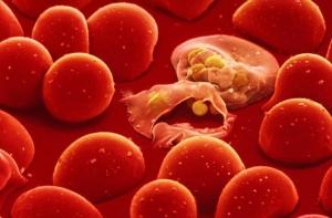 Tác hại của việc thiếu máu với chị em phụ nữ