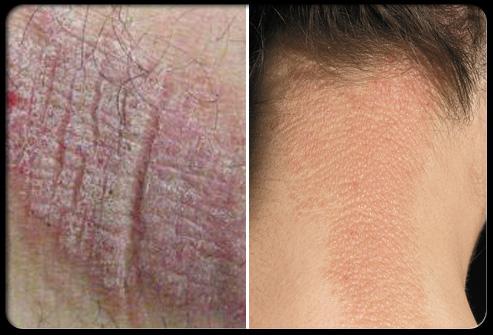 Viêm da thần kinh gây da do tình trạng gãi hoặc chà sát kéo dài tại một vị trí