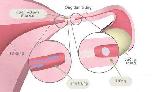 Viêm tắc vòi trứng do nhiều nguyên nhân khác nhau