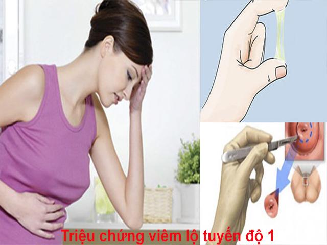 Dấu hiệu viêm lộ tuyến độ 1