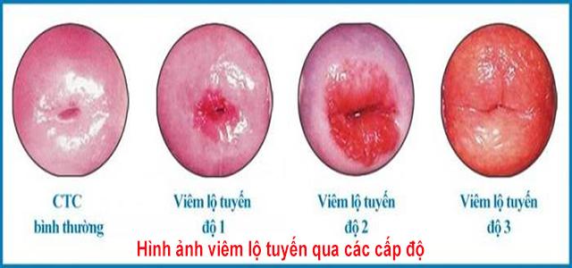 Hình ảnh viêm lộ tuyến qua các cấp độ