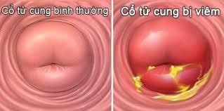 Viêm lộ tuyến cổ tử cung là một trong những bệnh viêm nhiễm vùng phụ khoa